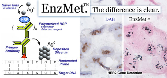 The mechanism of EnzMet SISH technology, with DAB comparison in HER2 breast cancer tissue assay.